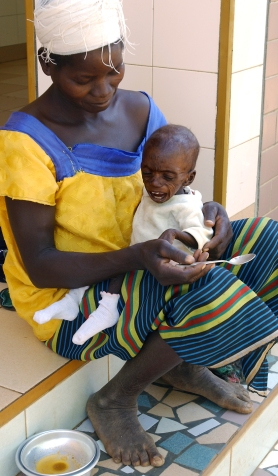 Cas critique de malnutrition au CREN de Nanorro. Nanorro, BURKINA FASO - 07/12/2005