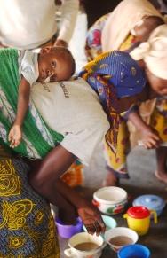 Le CREN de Ouagadougou ou la majorite des enfants malnutris sont egalement equipes de sondes gastriques. Ouagadougou, BURKINA FASO - 16/12/2005